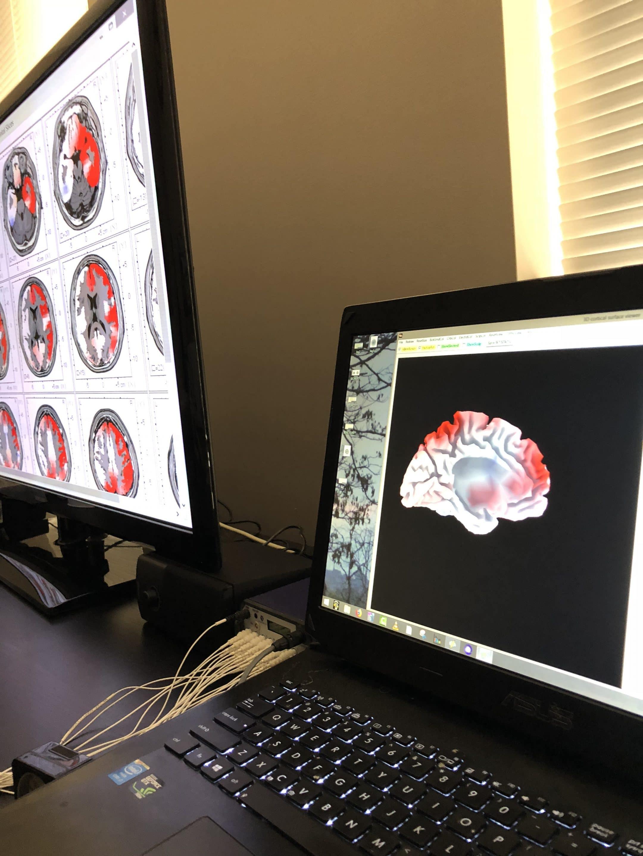 Questions about Loreta Neurofeedback